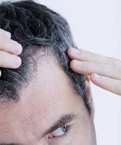 Die Haartransplantation (mit der FUE Technik)